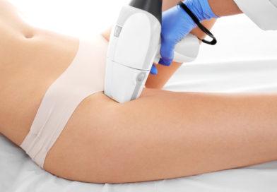 Depilacja laserowa dla kobiet i mężczyzn przy użyciu lasera Vectus